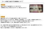 (写真)歯並びの治療期間について