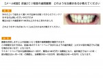 (写真)前歯3ミリ程度の歯間離開 どのような治療があるか教えてください