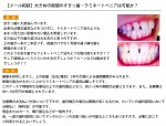 (写真)大きめの隙間のすきっ歯…ラミネートベニアは可能か?