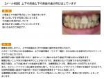 (写真)上下の前歯と下の奥歯の歯が飛び出しています