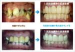 歯科治療恐怖症の方のために