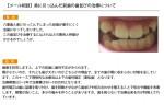 (写真)奥に引っ込んだ前歯の歯並びの治療について