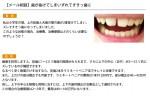 (写真)歯が抜けてしまいずれてすきっ歯に