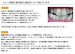 (写真)歯の変色と歯並びについて悩んでいます