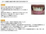 (写真)歯並びが悪く受け口なのが悩みです
