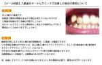 (写真)八重歯をオールセラミックで治療した場合の費用について