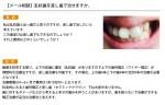 (写真)乱杭歯を差し歯で治せますか。