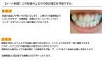(写真)この前歯の上だけの部分矯正は可能ですか。