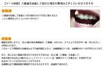(写真)八重歯を抜歯して揃えた場合の費用はどのくらいかかりますか