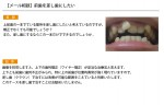 (写真)前歯を差し歯にしたい