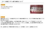 (写真)すきっ歯の治療法について
