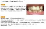 (写真)左右違う歯の長さについて
