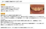(写真)前歯が大きく出ています