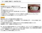 (写真)前歯の5~6本が気になる