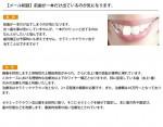 (写真)前歯が一本だけ出ているのが気になります。