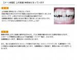 (写真)上の前歯1本斜めになっています