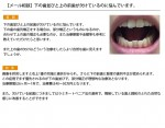 (写真)下の歯並びと上の前歯が欠けているのに悩んでいます。