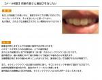 (写真)前歯の長さと歯並びを治したい