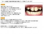 (写真)前歯の横の歯が内側に入って隠れてしまいます