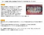 (写真)変色と左前歯は下が欠けているのが気になっています。