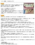 小学校の頃、永久歯に生え変わった時にはもう反対咬合に 歯のことを考えると憂鬱