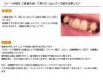 (写真)八重歯を抜いて奥に引っ込んでいる歯を治療したい