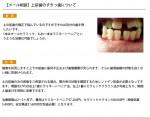 (写真)上前歯のすきっ歯について
