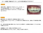 (写真)前歯が出ている…上だけの部分矯正はできますか?
