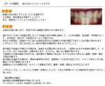 受け口がコンプレックス 前歯の2本が前にでて 部分矯正は? 値段は?