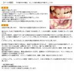 下の歯のみの矯正、もしくは部分矯正は可能?下の歯は1本大きく外に出て
