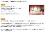 (写真)八重歯を治したいと思っています