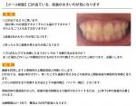 (写真)口が出ている、前歯が大きいのが気になります