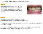 (写真)前歯の一箇所だけが受け口になっています