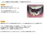 (写真)かみ合わせが悪く、下の歯がガタガタです