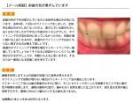 (写真)前歯の色が黒ずんでいます