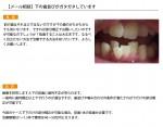 (写真)下の歯並びがガタガタしています
