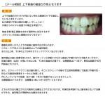 (写真)上下前歯の歯並びが気になります