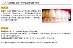 (写真)前歯一本の矯正は可能ですか