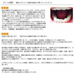 親知らずによって前歯の歯並びが悪く 部分歯科矯正の治療期間、最低総費用を?