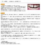 上の前歯のすきっ歯を矯正したい 部分矯正が可能か? 矯正期間、費用?は