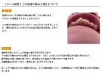 (写真) 上の前歯の痛みと矯正について