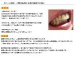 (写真) 上顎の右側と左側の歯並びの違い