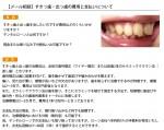 (写真)すきっ歯・出っ歯の費用と支払いについて