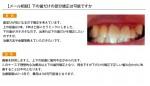 (写真)下の歯だけの部分矯正は可能ですか