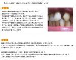 (写真)奥に入り込んでいる歯の治療について