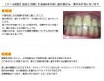 (写真)差し歯の黄ばみ、黒ずみが気になります
