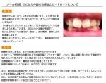 (写真)がたがたの歯の治療法とカードローンについて