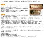 過蓋咬合かと思う 顎が結構ズレているのか常に下顎が疲れて 費用、治療の方法を