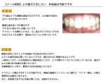 (写真)上の歯だけ治したい。非抜歯は可能ですか