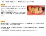 (写真)前歯が大きく、横の歯が奥に入り込んでいます